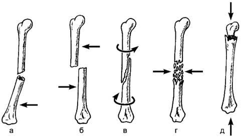Классификация переломов костей у взрослых и детей