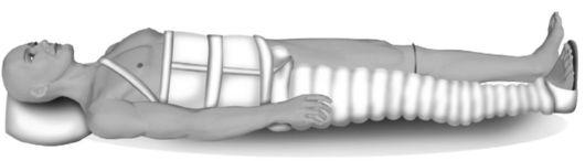 Иммобилизация при переломе бедра