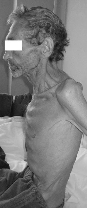 Формы грудной клетки в норме и возможные патологии