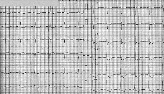 ЭКГ при инфаркте миокарда: фото пленок и расшифровка признаков