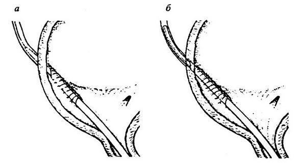 Гематома в брюшной полости лечение
