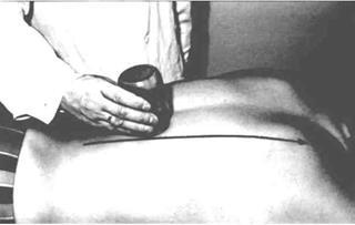 Массаж при невропатии лучевого нерва