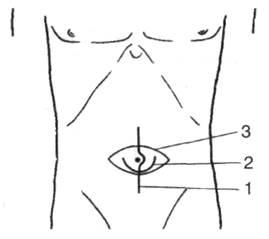 Операция шпицы при пупочной грыже у детей