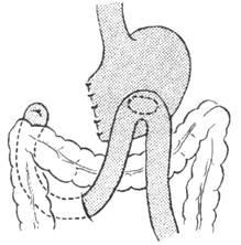 Границы резекции желудка