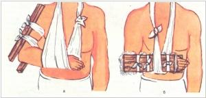 за сколько времени нужно разработать коленный сустав после перелома надколенника