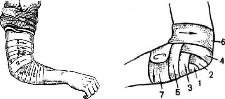 Наложение первичной повязки на локтевой сустав ортез для коленного сустава цена купить