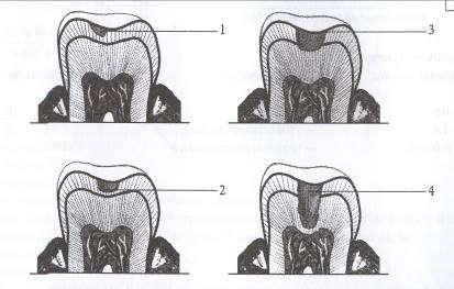 КАРИЕС КОРНЯ Зуба что это диагностика лечение профилактика