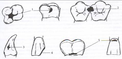 I. Клинико-топографическая классификация