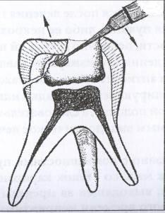 Особенности применения аппликационных форм препаратов на основе гидроксида кальция - Дентарт