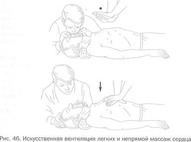 Первая помощь при приступе стенокардии и инфаркте миокарда