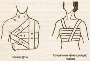 Повязки на грудную клетку и живот