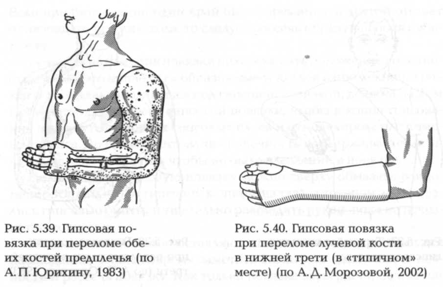 Гипсовая повязка при переломе локтевого сустава как вылечить колено в домашних условиях капустным листом