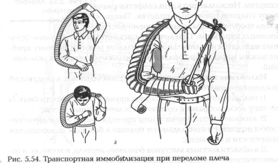 Шина цито для плечевого сустава г чебоксары клиника по замене суставов