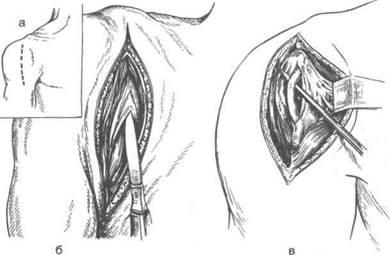 Техника артротомии плечевого сустава замена суставов москве квоте