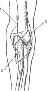 Изображение - Артротомия локтевого сустава image152