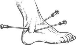 Пункция голеностопного сустава ортез на коленный сустав детский orlett