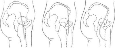 Капсулотомия тазобедренного сустава
