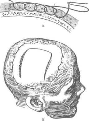 Остановка кровотечения из мягких тканей головы