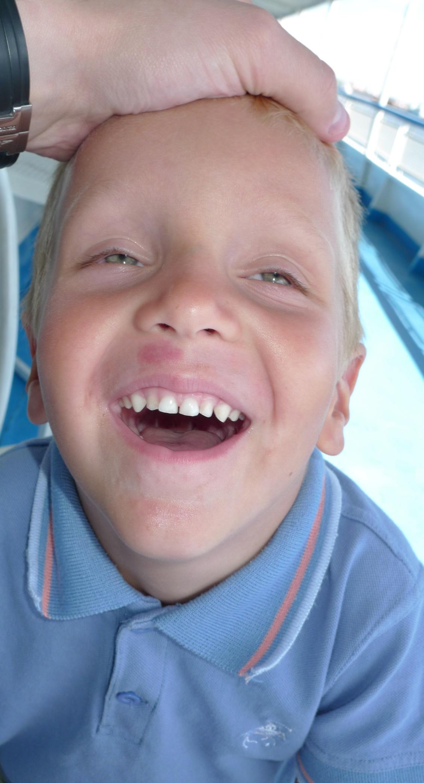 Верхние боковые резцы у детей фото