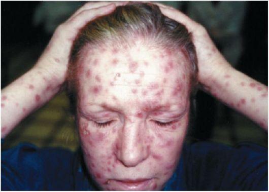 высыпания вторичного сифилиса на голове и туловище