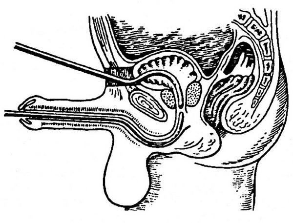 фото члeнов с встaвлeнными шaрикaми и рaзрeзaнной головкой