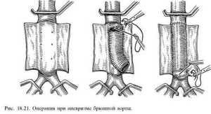 Аневризмы аорты
