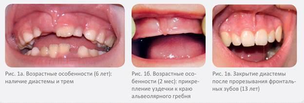 Уздечка верхней губы у ребенка: коррекция или